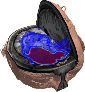 Segment of brain showing injured region.