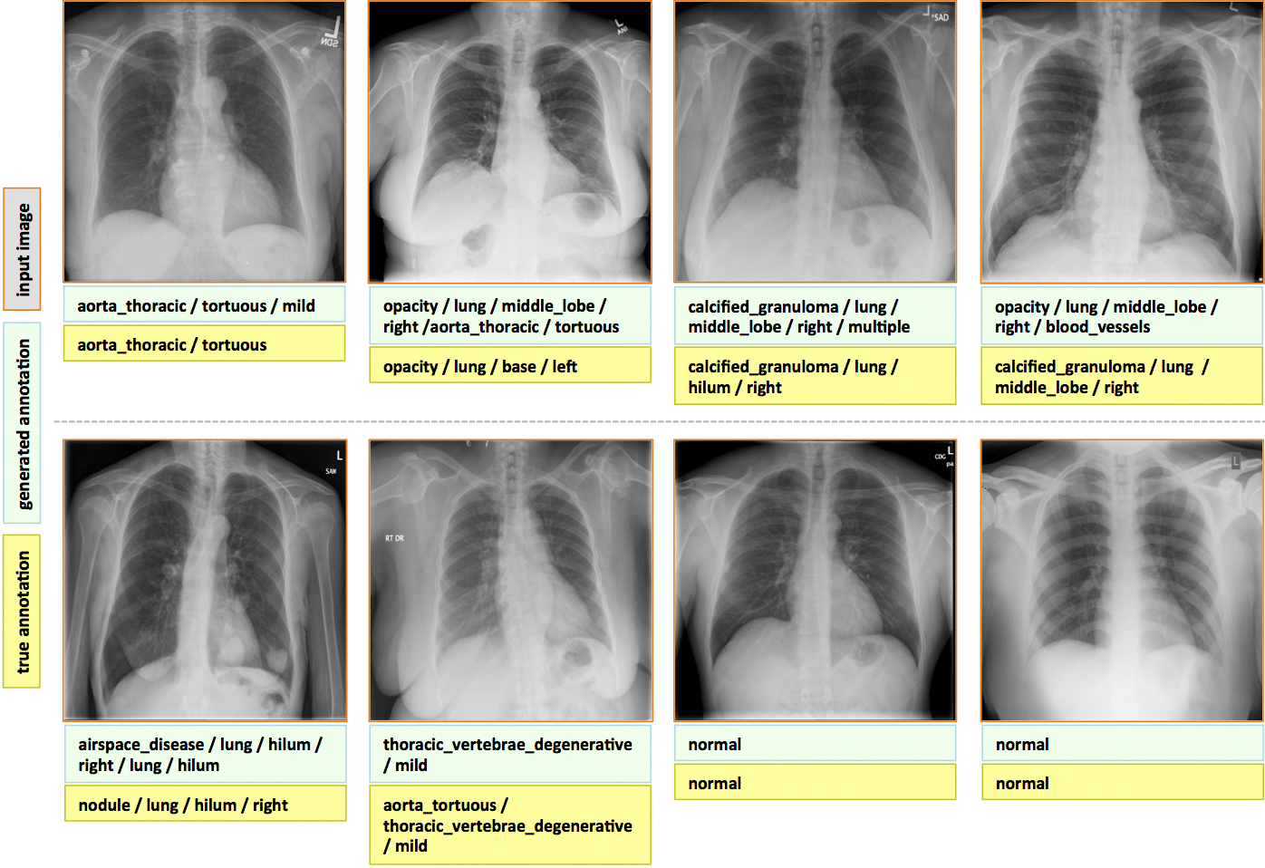 Chest X-ray annotations