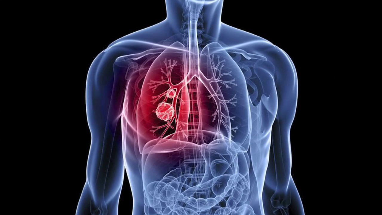 Lung Cancer Kaggle