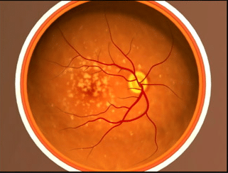 Eye showing advanced macular degeneration.