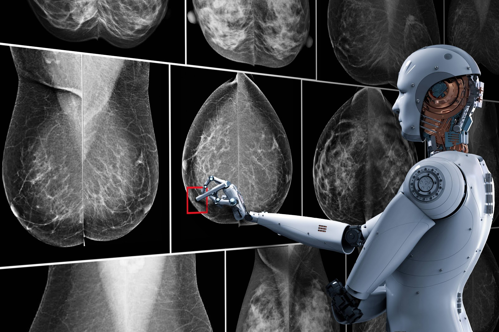 ai-to-detect-breast-cancer
