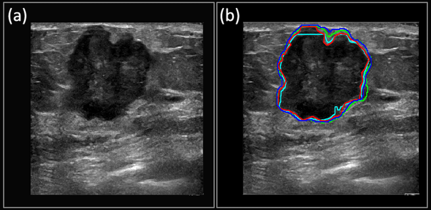 Deep Learning Enables Cancer Diagnosis Via Ultrasound