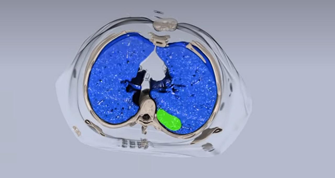 Bringing Enterprise Medical Imaging to Life: RSNA Highlights What's Next for Radiology